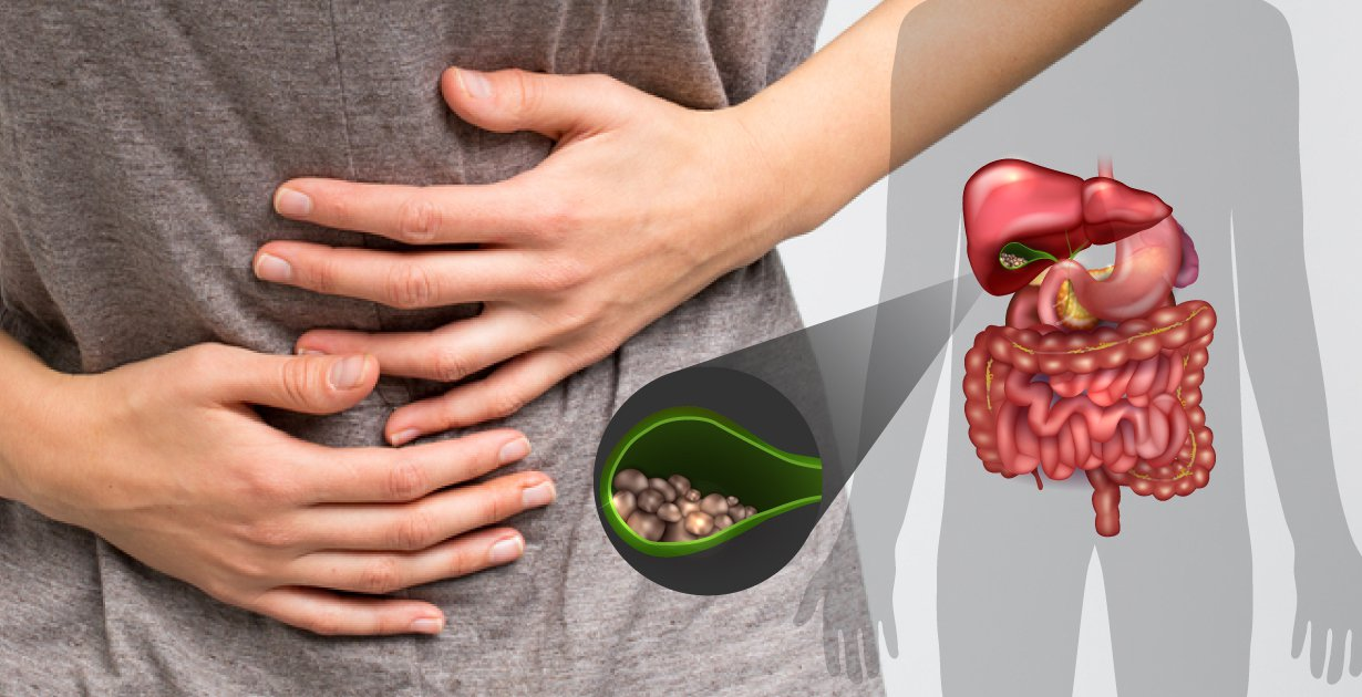 Gall Stones Symptoms & Natural Relief Treatment